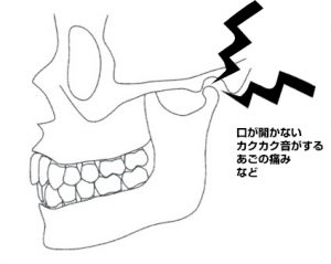 歯牙 に も かけ ない 意味
